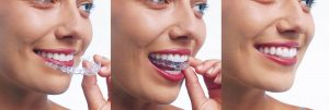 orthodontie adulte invisible
