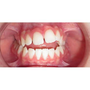 orthodontie adultes bezons