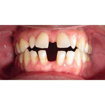 orthodontie enfants bezons