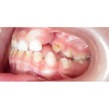 orthodontie invisible bezons