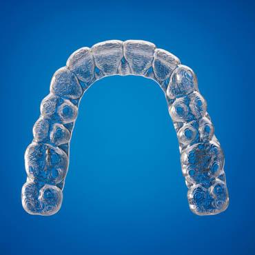 orthodontie adolescents bezons