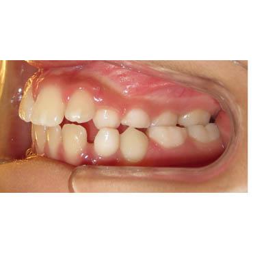 orthodontie esthétique bezons