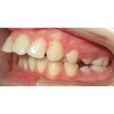 proalv olie alignement des dents cabinet orthodontiste bezons. Black Bedroom Furniture Sets. Home Design Ideas