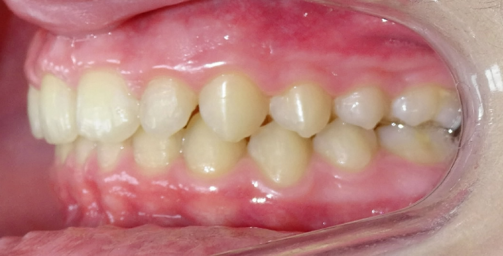 APRES : Retrognathie mandibulaire adolescent de profil