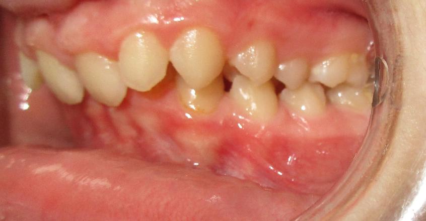 AVANT : Retrognathie mandibulaire adolescent de profil