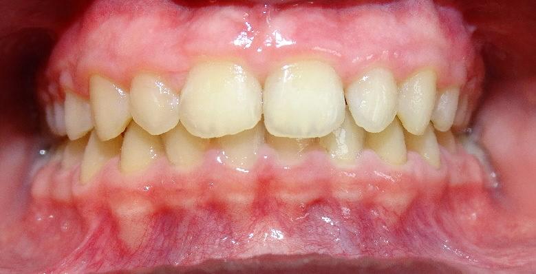 APRES : Retrognathie mandibulaire adolescent de face