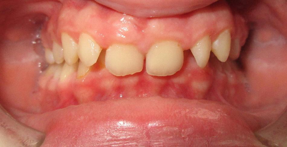 AVANT : Retrognathie mandibulaire adolescent de face