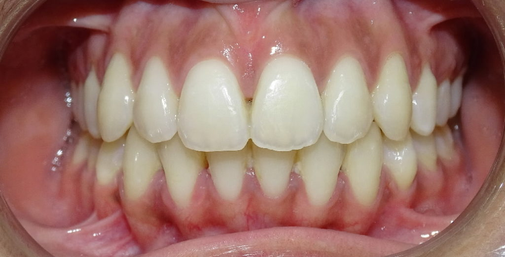 Après : dysharmonie dento-maxillaire adolescente de face