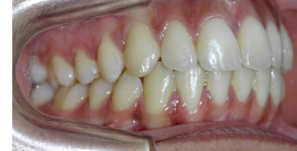 Après : Dysharmonie dento-maxillaire adolescente de profil