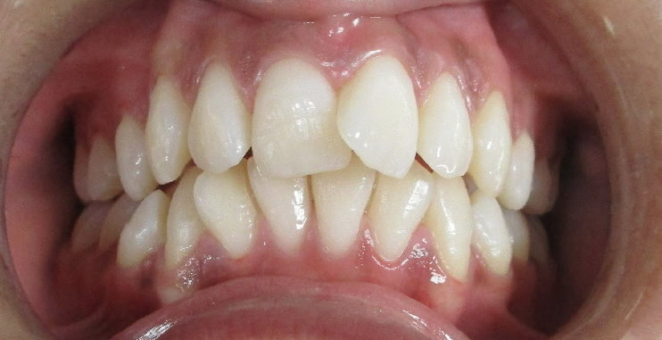 Avant : dysharmonie dento-maxillaire adolescente de face
