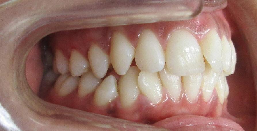 Avant : Dysharmonie dento-maxillaire adolescente de profil