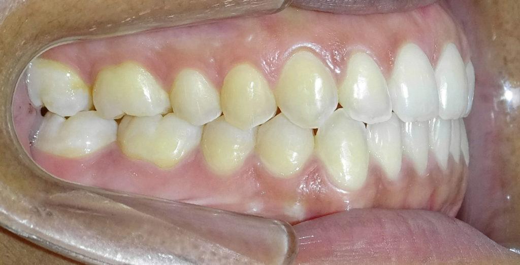 Après : Anomalie squelettique de la taille et de la forme des mâchoires d'une adulte de profil
