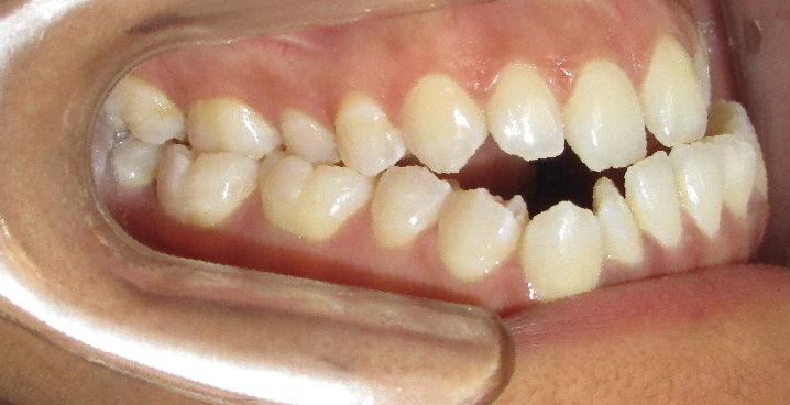 Avant : Anomalie squelettique de la taille et de la forme des mâchoires d'une adulte de profil